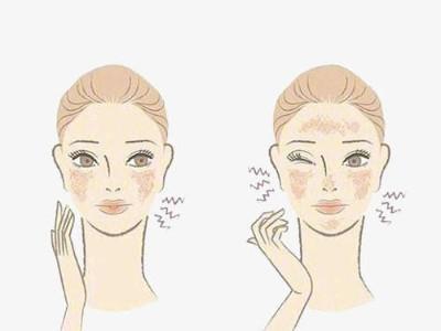 秋季皮肤为何会过敏?芳香世家告诉你