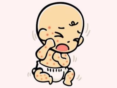 精油小课堂 | 宝宝有湿疹?东帝汶黄金库奎果油安排上!